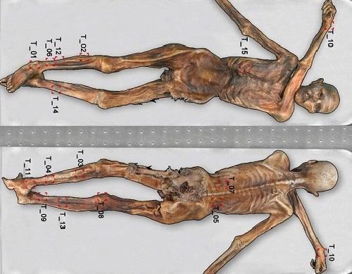 La momia de �tzi, el Hombre de Hielo, presenta 61 tatuajes