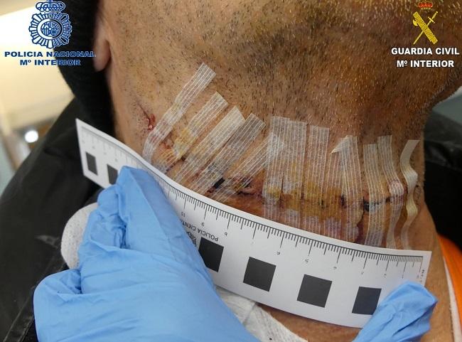 La Guardia Civil y la Policía Nacional colaboran en la detención a dos hombres por agredir con un cúter a un empleado que defendía a su Jefa