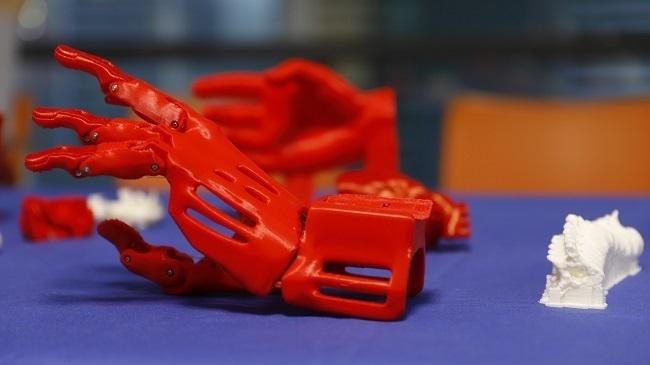 Son Espases utiliza la impresión 3D para planificar intervenciones quirúrgicas