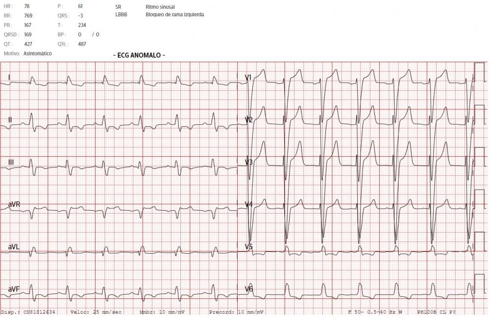 Incorporan una alerta para identificar rápidamente las alteraciones del electrocardiograma que pueden suponer un riesgo para el paciente