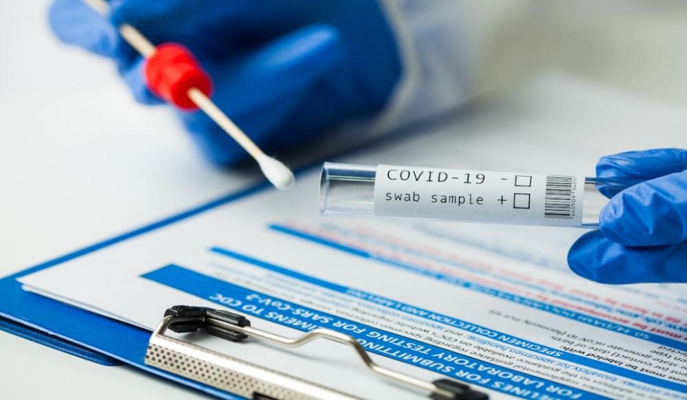 Ya hay 327 casos activos de Coronavirus en Baleares, 67 más que el viernes